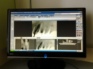Рентген-диагностика зубов Запорожь Цифровое изображение с радиовизиографа