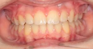 Ортодонтия брекеты Запорожье после лечения
