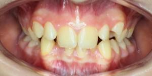 Брекеты Запорожье ортодонтия
