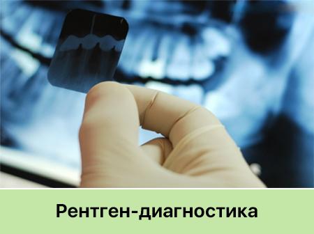 Рентген зубов Запорожье Стоматология Никас