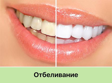 Стоматология Запорожье отбеливание зубов