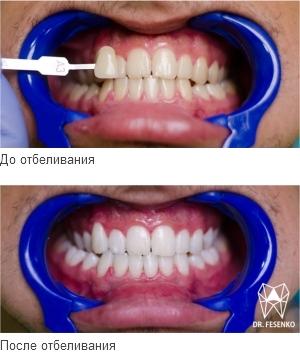 Отбеливание зубов Запорожье