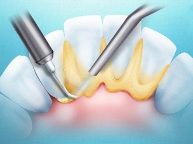 Как эффективно удалить зубные камни