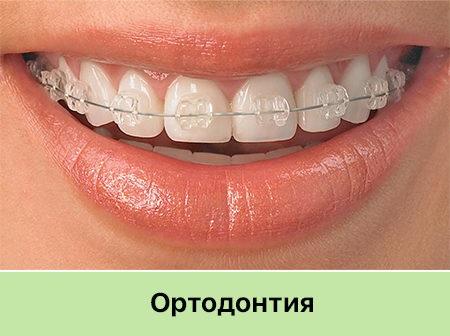 Брекеты Запорожье стоматология Никас